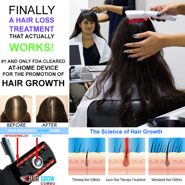 Hoting Hair Loss Solutions Before And After